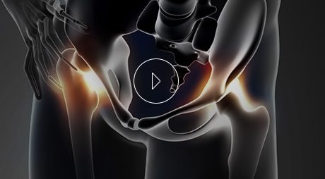 Educational Video From Benjamin Young, M.D. Orthopedic Surgeon
