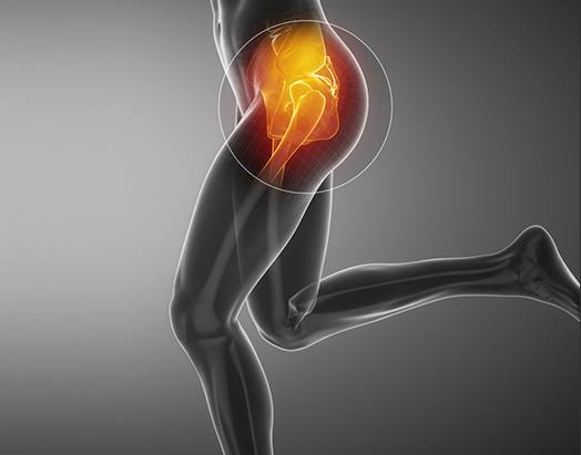 Hip Service at Benjamin Young, M.D. Orthopedic Surgeon Adult Hip & Knee Joint Reconstruction